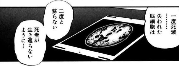 アカギの脳
